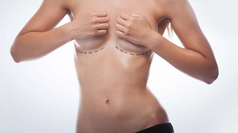 Breast uplifts