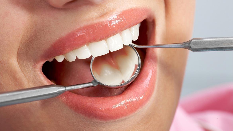 Dark Gum Treatment